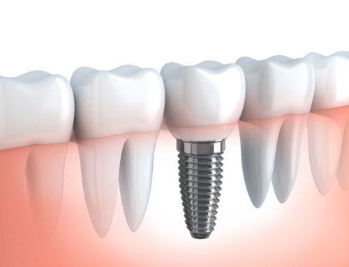 Rodzaje implantów w stomatologii